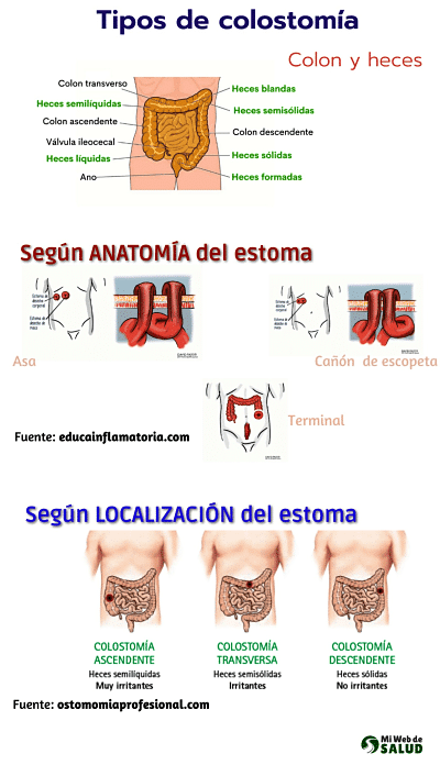 tipos-colostomía